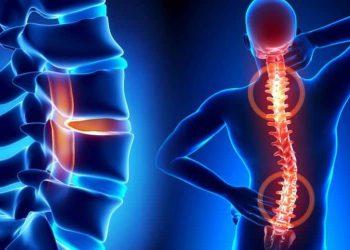 simptomele-herniei-de-disc-si-indemnul-neurochirurgului-vlad-ciurea