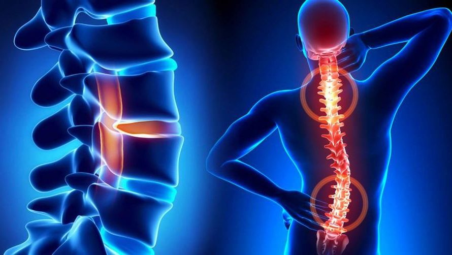 Simptomele herniei de disc și îndemnul neurochirurgului Vlad Ciurea